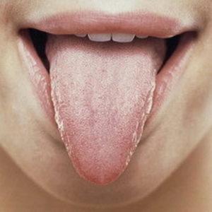 Как лечить молочницу во рту у взрослых