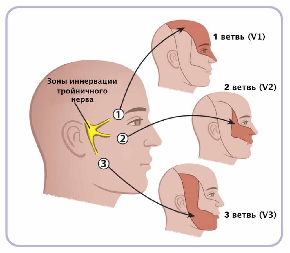 неврит тройничного нерва симптомы
