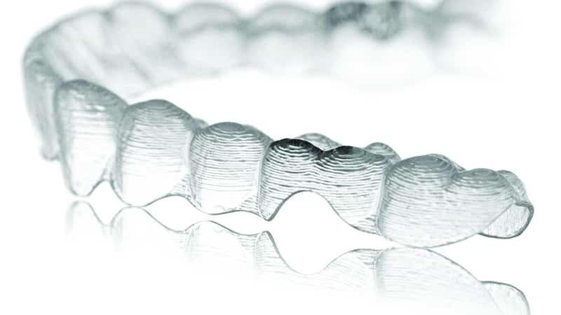 Как выпрямить зубы в домашних условиях элайнерами