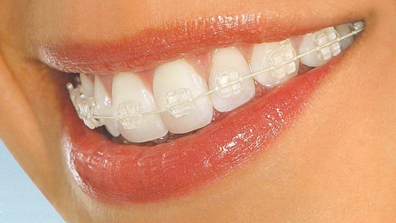 Выпрямление зубов в домашних условиях брекетами