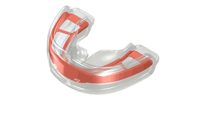 Как выровнять зубы в домашних условиях трейнерами