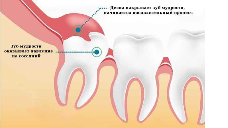 Воспаление капюшона зуба мудрости