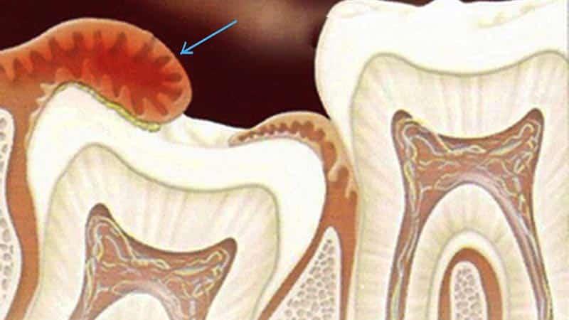 Причины удаления капюшона зуба мудрости