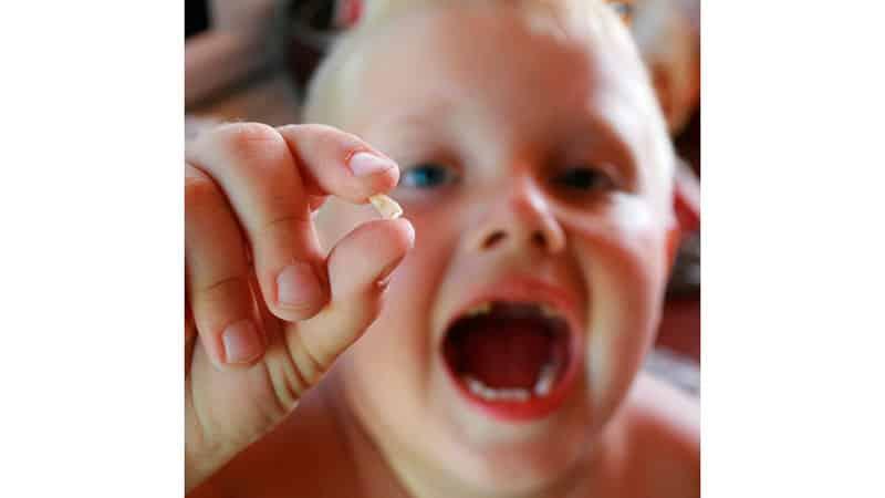 Выпадение молочных зубов у детей - фото