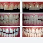 Что делать, если зубы кривые