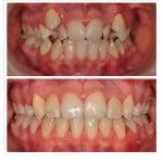 Кривые зубы фото