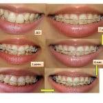Исправление кривых коренных зубов брекетами