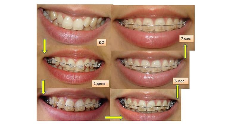 Все пластины для зубов у детей фото