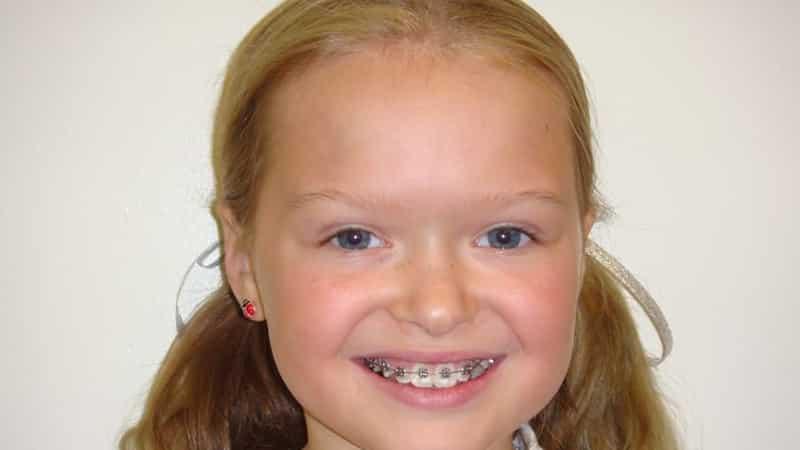 У ребенка криво растут зубы