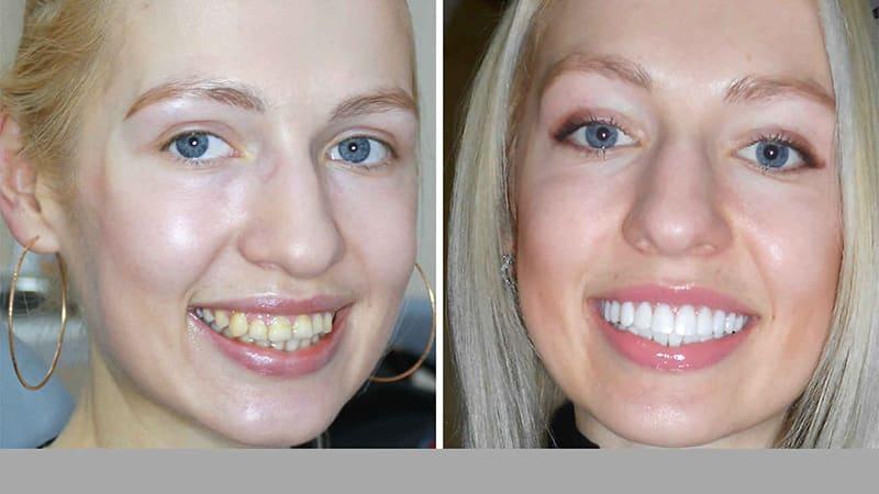 Кривые зубы: до и после