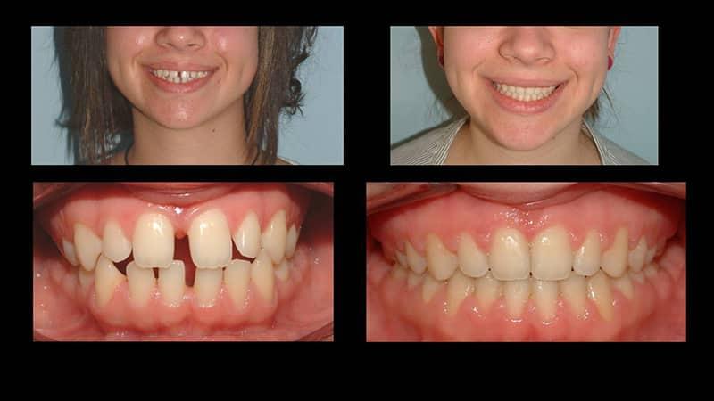 Как исправить кривые передние зубы