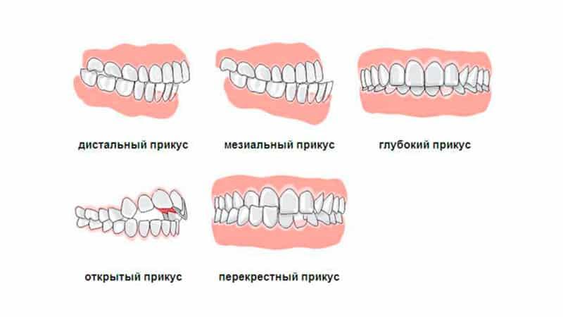 глубокий прикус до и после лечения фото