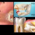 Зачем удалять зуб мудрости