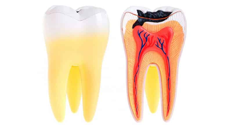 Почему не лечат зуб мудрости