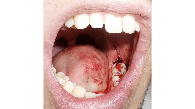 Хорошее сообщение удаление зуба мудрости на нижней челюсти: особенности это большой