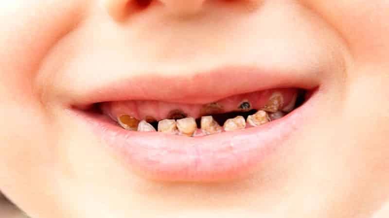 почему у детей гниют зубы