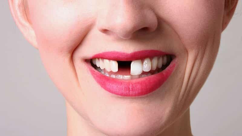 Сон о выпавшем зубе