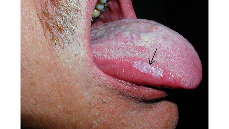 Кандидоз полости рта как лечить