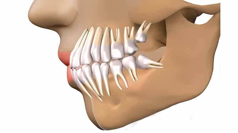 Фото дистопированных зубов