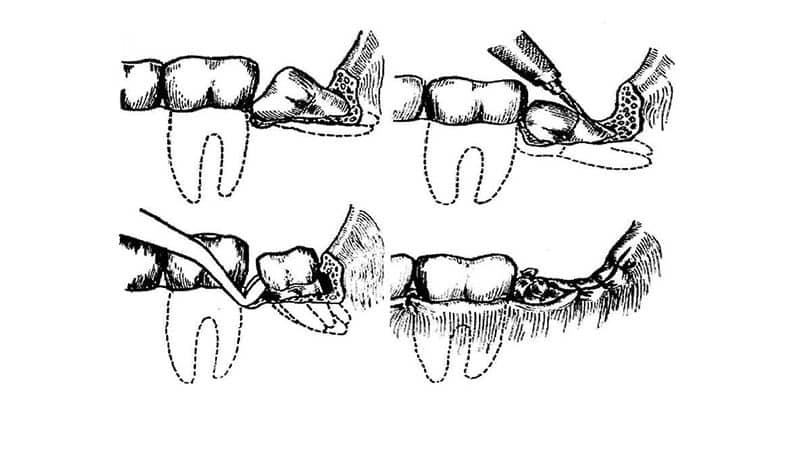 Если не удалять сложную 8 зуб