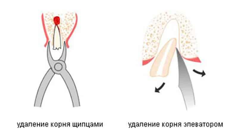 Безболезненное удаление корня зуба