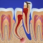 После удаления зуба мудрости болит челюсть