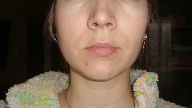 Щека болит неделю после удаления зуба мудрости