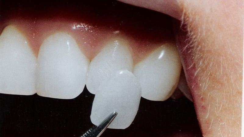 Способы выпрямления зубов