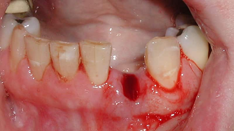 Вырвали зуб - как долго заживает десна