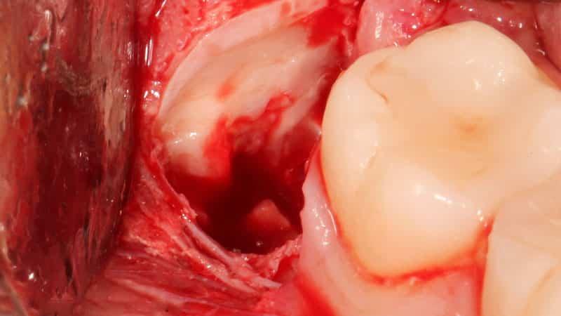 Последствия удаления 8 зуба