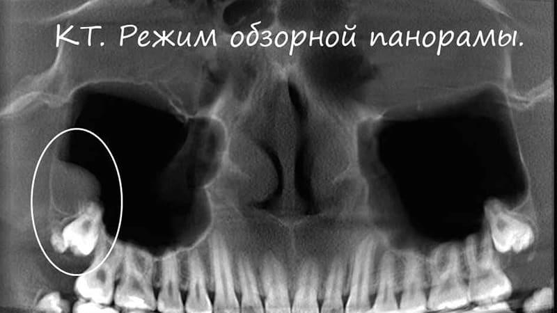 Последствия сложного удаления зуба мудрости