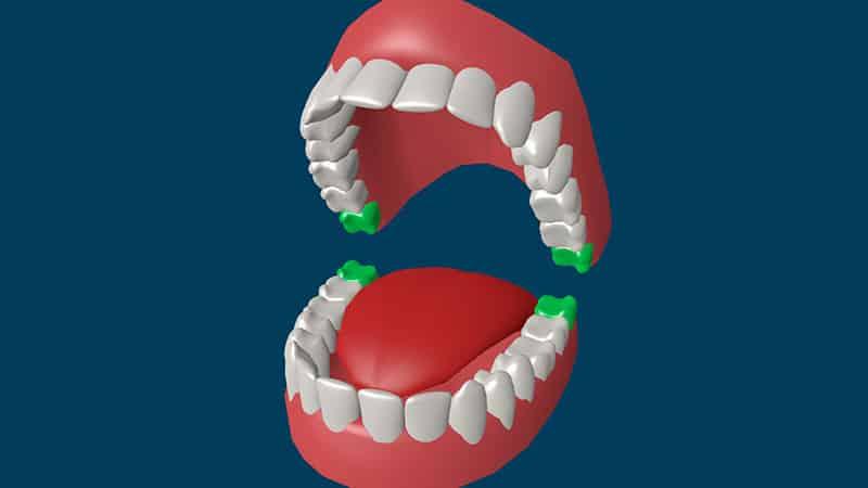 Больно ли удалять зуб мудрост