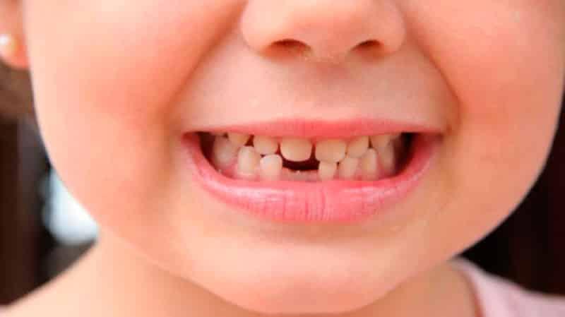 В каком возрасте меняются зубы у детей