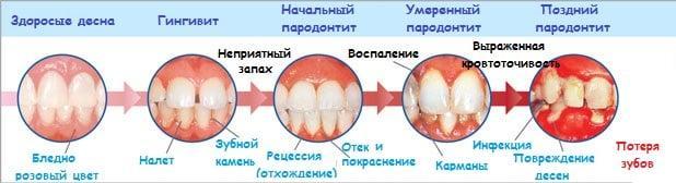 причины почему болят десна и зубы чем лечить в домашних условиях что делать