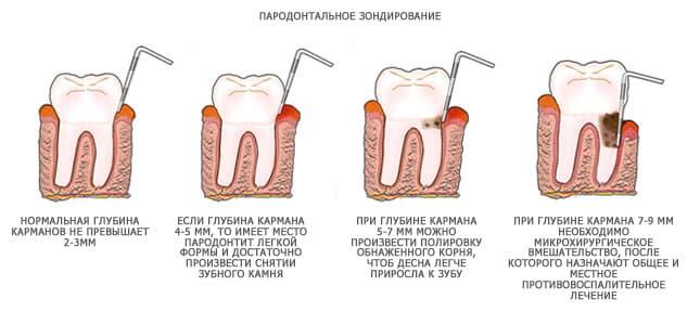 что делать если десна красная и сильно болит у основания возле зуба
