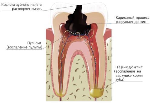 болит зуб болит десна что делать если