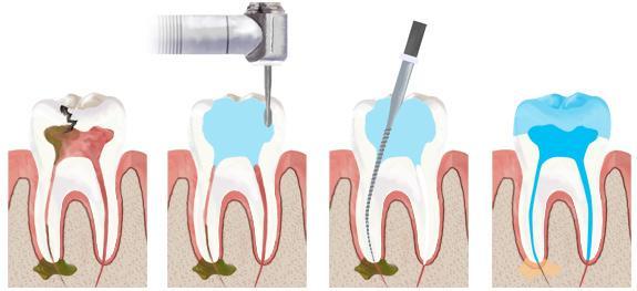 почему болит зуб без нерва при надавливании