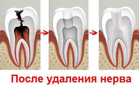 сколько может должен ли болеть зуб с удаленным нервом после удаления нерва без
