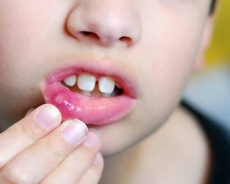 чем лечить стоматит у ребенка 3 года