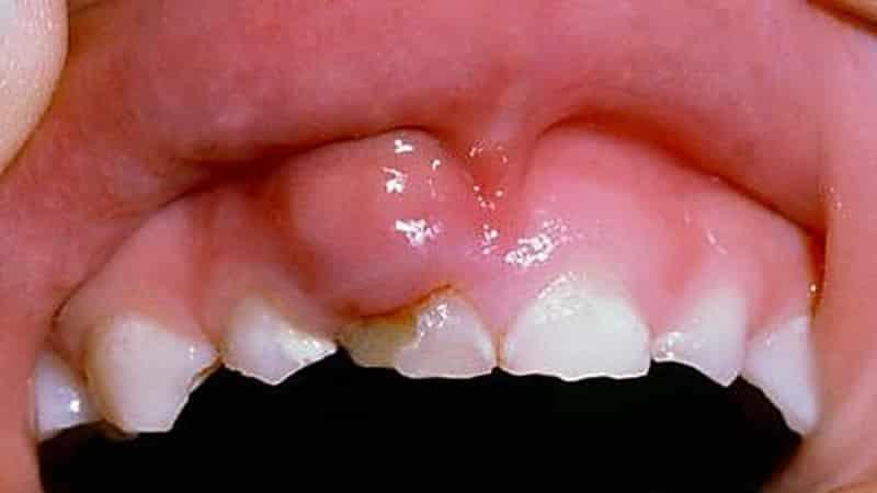 чем можно полоскать рот при воспалении десны кровоточивости десен