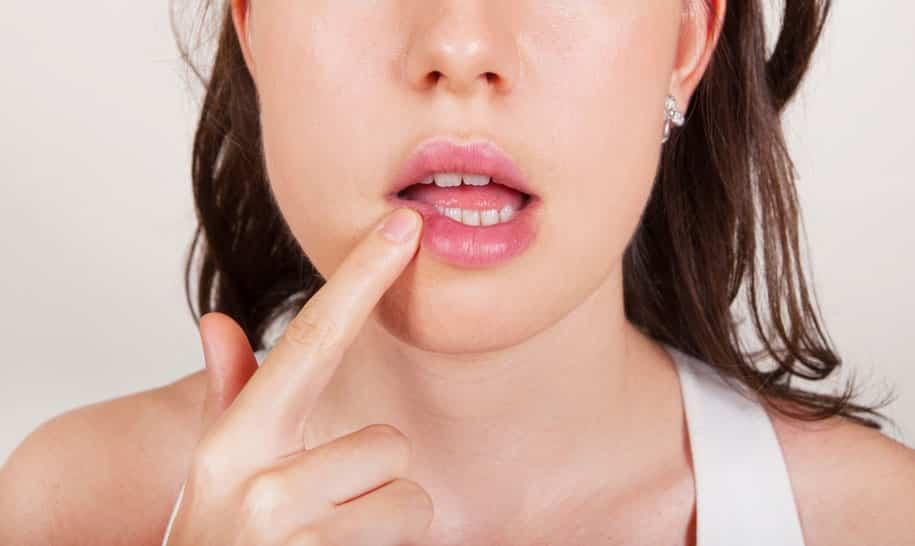 чем лечить стоматит или герпес во рту у взрослого как выглядит