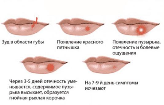 чем лечить герпес во рту фото