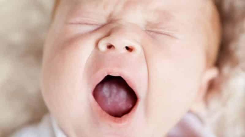 грибок во рту фото лечение симптомы