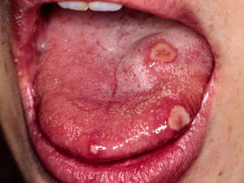 выделения изо рта неприятным запахом