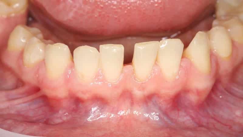 открытый перелом челюсти