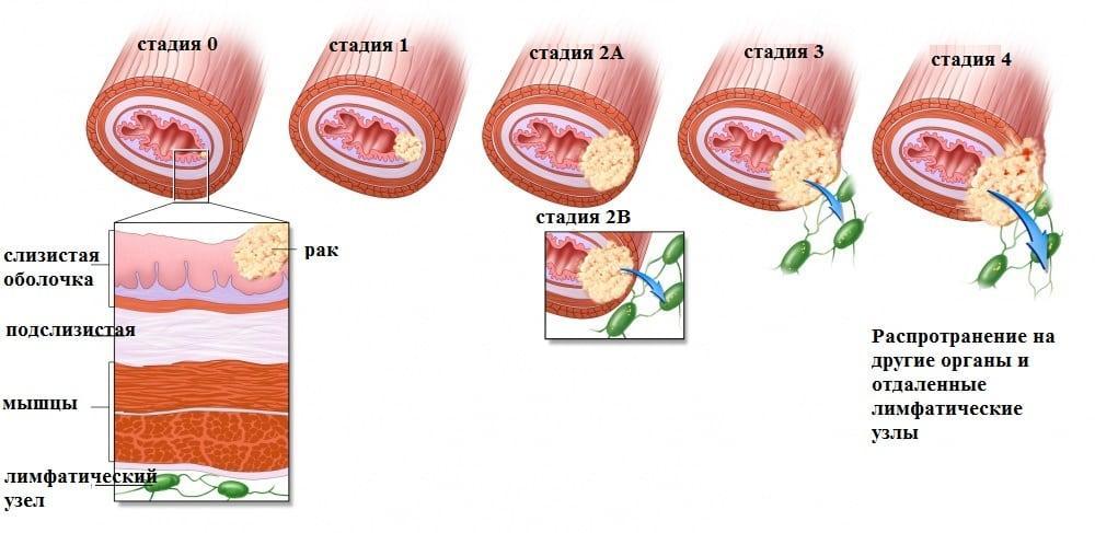 рак полости рта симптомы фото признаки