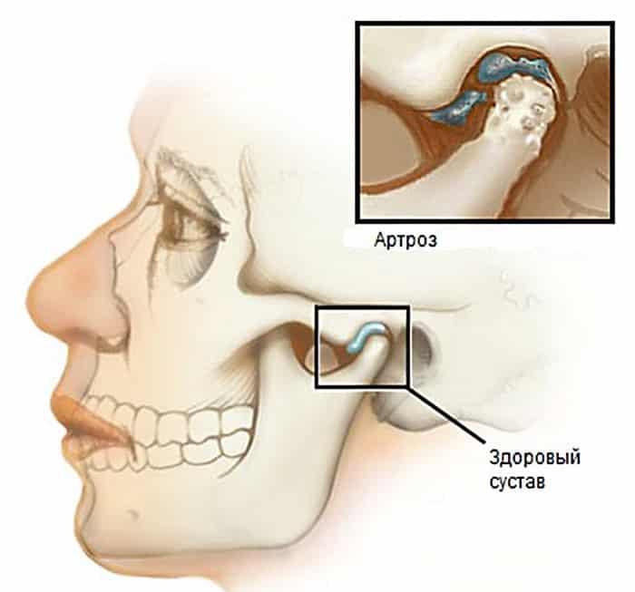 почему хрустит челюсть при открывании рта щелкает с одной левой правой стороны при жевании когда открываешь рот что делать если