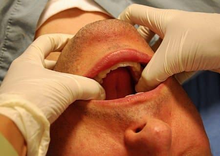челюстной сустав щелкает