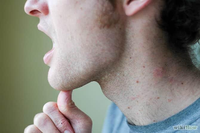 почему щелкает челюсть при открытии рта жевании что делать