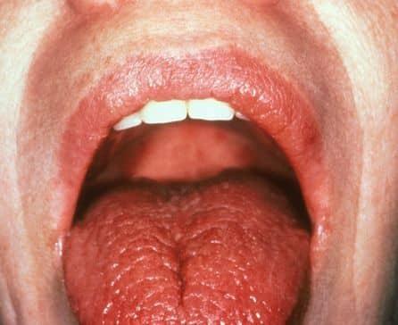 почему язык щиплет чешется причины лечение что делать